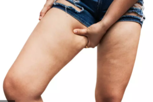 THE 4 STAGES OF LIPEDEMA–A CLOSER LOOK AT EACH ONE
