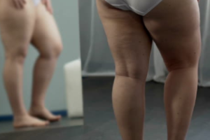 LIPEDEMA EXPLAINED (NO…YOU ARE NOT JUST OVERWEIGHT)
