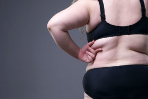 THE DIFFERENCE BETWEEN LIPEDEMA AND OBESITY
