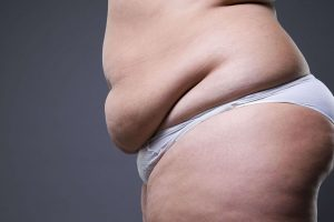 WILL LIPEDEMA CONTINUE TO PROGRESS WITHOUT TREATMENT?