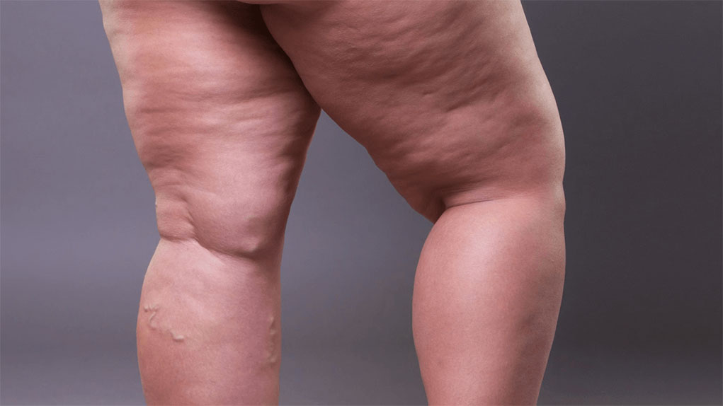 ARE FAT LEGS AT PUBERTY AN EARLY SIGN OF LIPEDEMA?