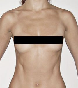 breast surgery photo front