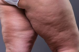 Manual Lipedema Extraction (MLE)