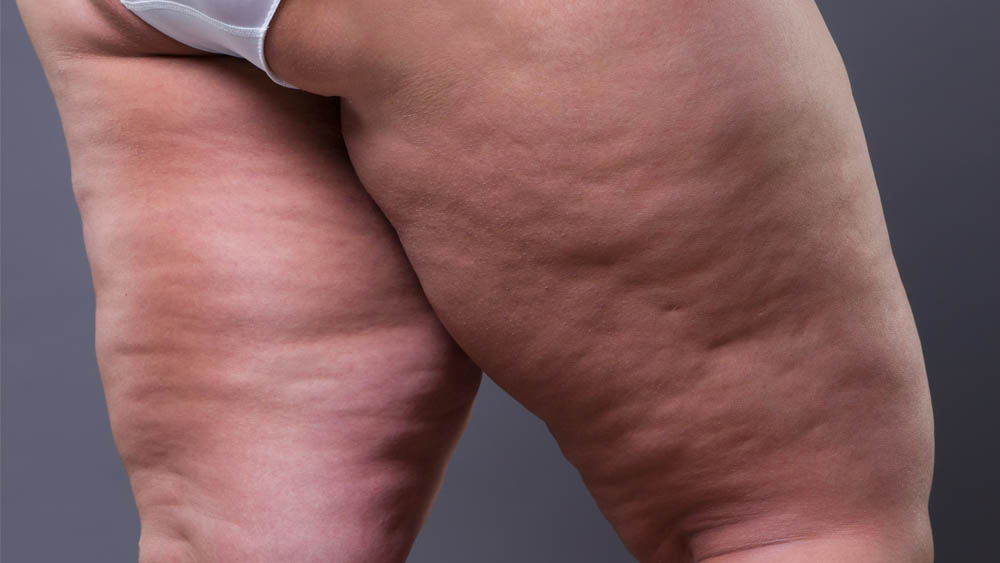 Manual Lipedema Extraction