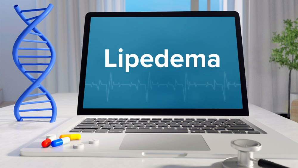Lipedema Stages