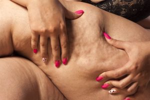 Painful Cellulite:  Why Does My Fat Hurt?