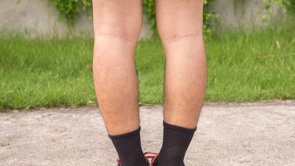 Knock Knees Treatment:  Do I Have Lipedema?