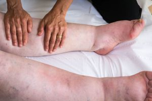 Lipedema and Lymphatic Drainage Massage:  What You Knead to Know