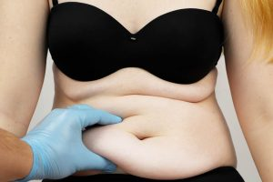 BMI Requirement for a Tummy Tuck?