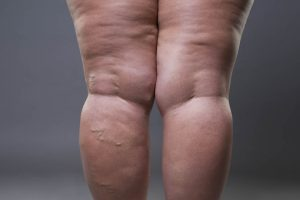 Taking a Stand Against Lipedema: Life After MLE